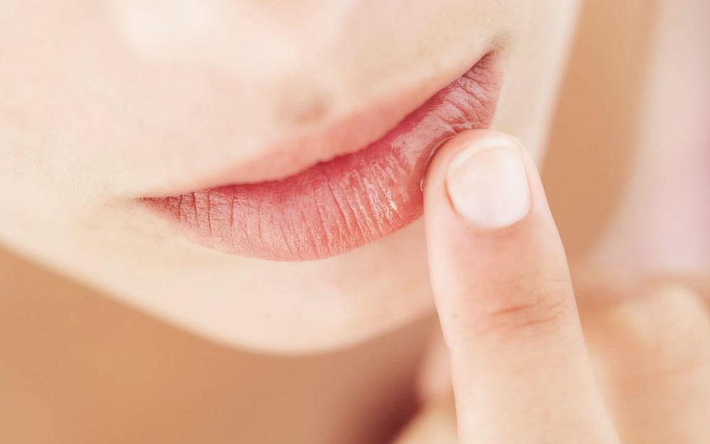 Kako da lečite ispucale usne